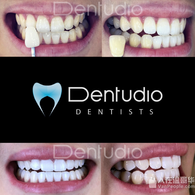 Dentudio 牙科诊所: 轻松,轻柔,完美!提供最先进的仪器和技术,七天营业!