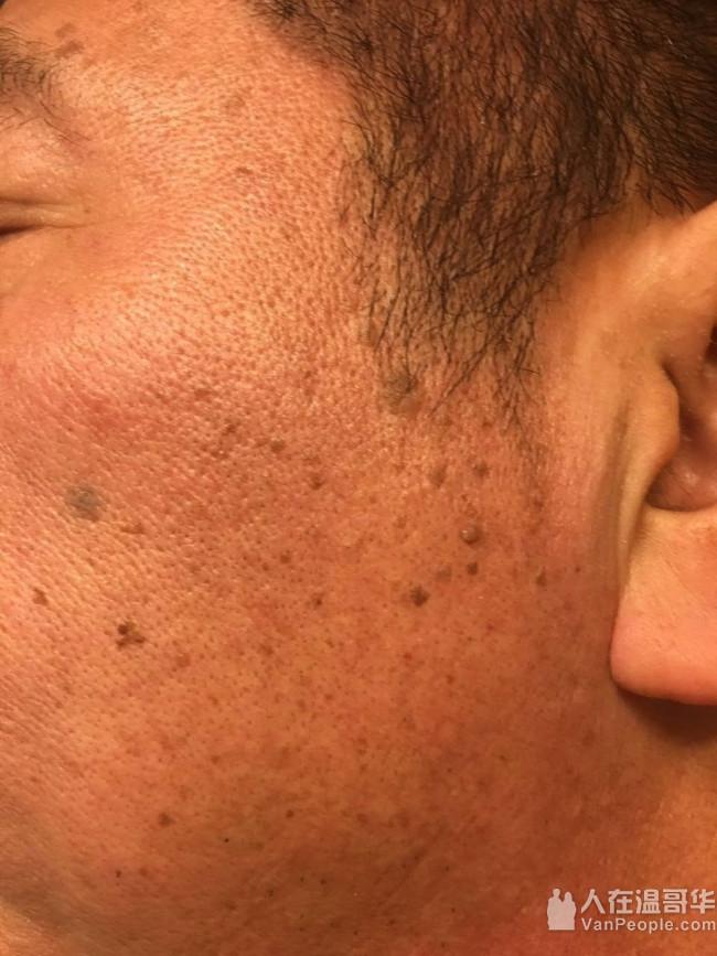 《绿の季》冰点永久脱毛,激光永久去黑头,祛斑祛痣扁平疣,祛额头眼角皱纹,洗眉洗眼线,立体纹眉,日常