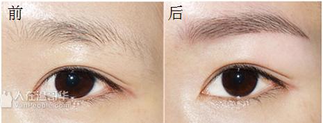 《绿の季》(新光)激光冰点脱毛,激光永久去黑头,激光洗眉,纳米微针护肤,祛斑祛痣扁平疣,祛面部皱纹,