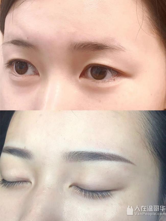 美之然养生馆(AllPro Beauty):美白去癍和疤痕,提升脸部,韩式半永久绣眉