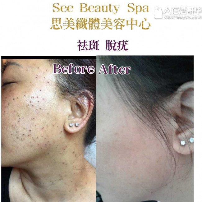 《See Beauty Spa》列治文思美纖體美容中心-我們資深美容師都是有十年以上的美容經驗