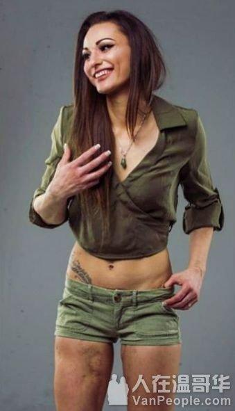 加拿大女子被狗啃到毁容,缝了上千针!如今拍裸照成了INS抖音网红!